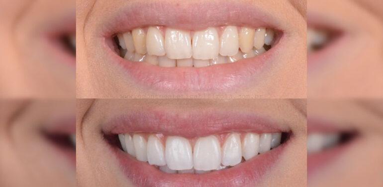 Conheça os três tipos de clareamento dental