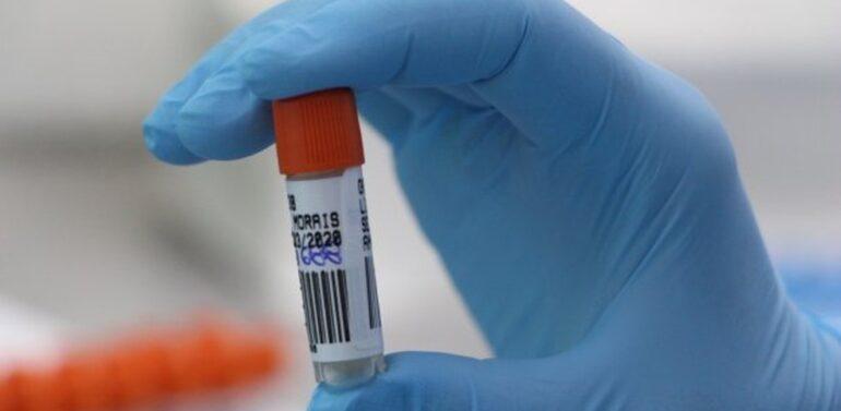 MP investiga descarte de testes para diagnosticar Covid-19 em Joinville